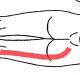Síndrome del músculo piramidal